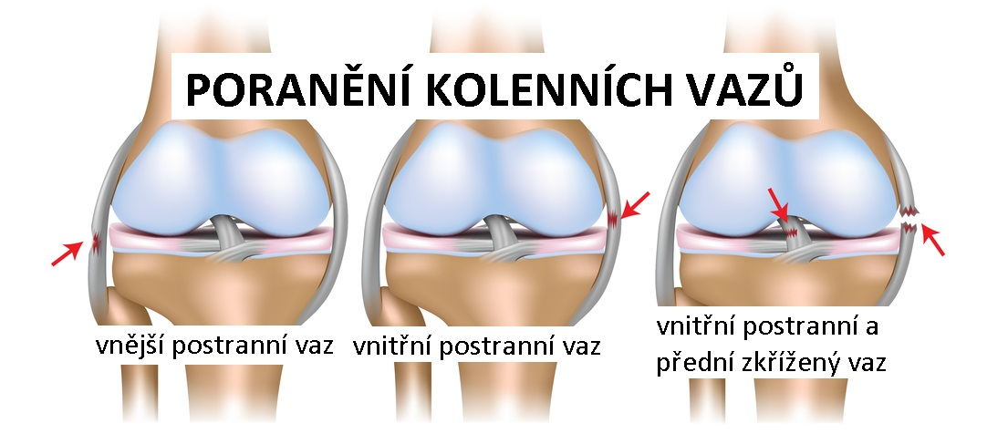 knee_ligam_injuries1083